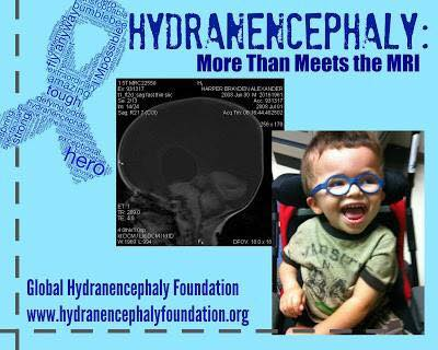hydranencephaly images